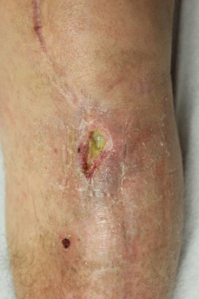 Extremity Reconstruction Gallery - Patient 5799786 - Image 1
