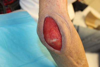 Extremity Reconstruction Gallery - Patient 5799804 - Image 1