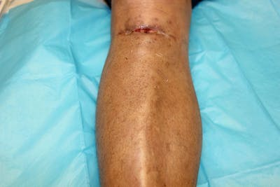 Extremity Reconstruction Gallery - Patient 5799820 - Image 1