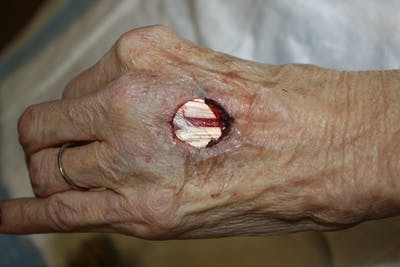 Extremity Reconstruction Gallery - Patient 5799833 - Image 1