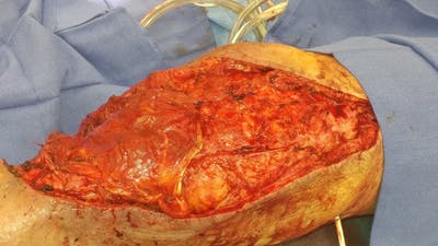 Extremity Reconstruction Gallery - Patient 5799948 - Image 1