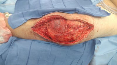 Extremity Reconstruction Gallery - Patient 5799950 - Image 1