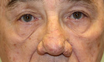 Rhinophyma Surgical Treatment Gallery - Patient 5800023 - Image 1