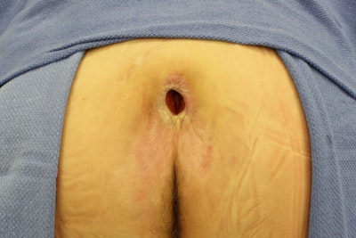 Pressure Sore Reconstruction Gallery - Patient 5800032 - Image 1
