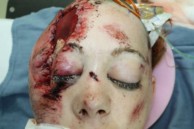 Skull Reconstruction & Cranioplasty Gallery - Patient 5800190 - Image 1