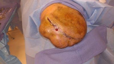 Skull Reconstruction & Cranioplasty Gallery - Patient 5800194 - Image 1