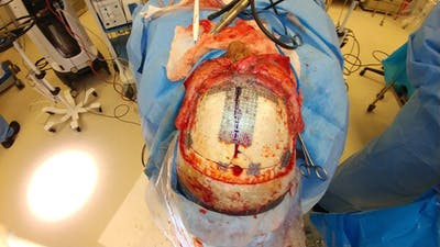 Skull Reconstruction & Cranioplasty Gallery - Patient 5800195 - Image 1