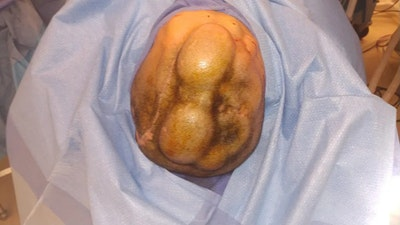 Skull Reconstruction & Cranioplasty Gallery - Patient 5800196 - Image 1