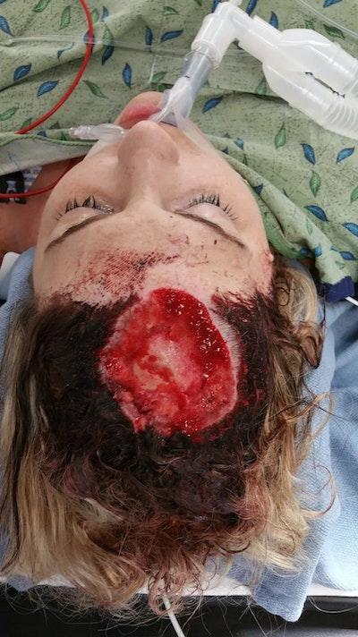 Skull Reconstruction & Cranioplasty Gallery - Patient 5800198 - Image 1