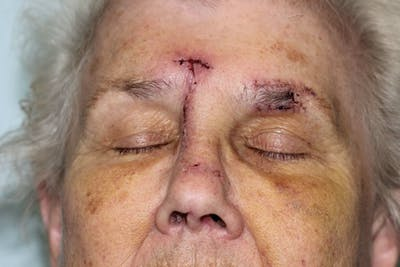 Facial and MOHS Reconstruction Gallery - Patient 5800729 - Image 1