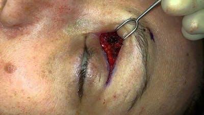 Migraine Surgery Gallery - Patient 5799772 - Image 1