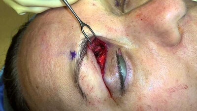 Migraine Surgery Gallery - Patient 5799773 - Image 1