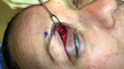 Migraine Surgery Gallery - Patient 5799773 - Image 1