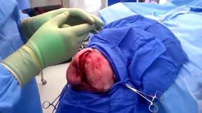 Skull Reconstruction & Cranioplasty Gallery - Patient 5800191 - Image 1