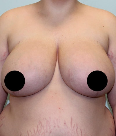 Breast Augmentation Gallery - Patient 5794640 - Image 1
