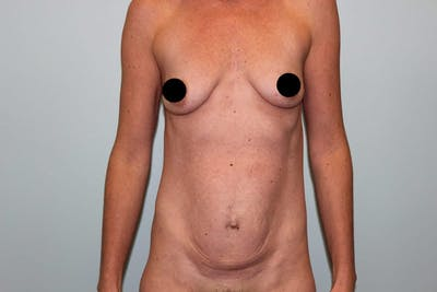 Breast Augmentation Gallery - Patient 5794642 - Image 1