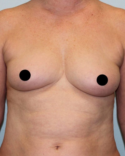 Breast Augmentation Gallery - Patient 5794643 - Image 1