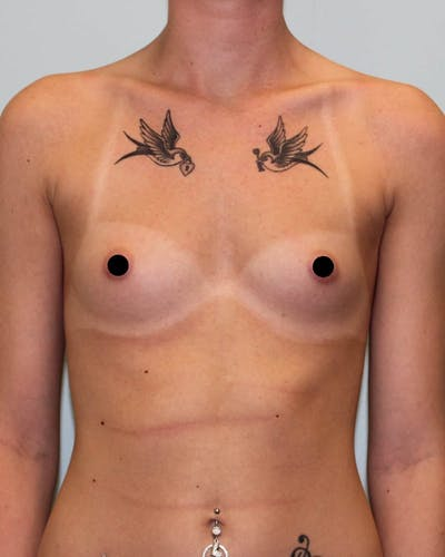Breast Augmentation Gallery - Patient 5794646 - Image 1