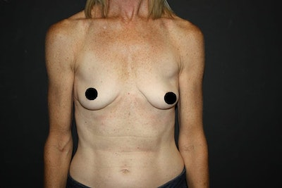 Breast Augmentation Gallery - Patient 5794647 - Image 1
