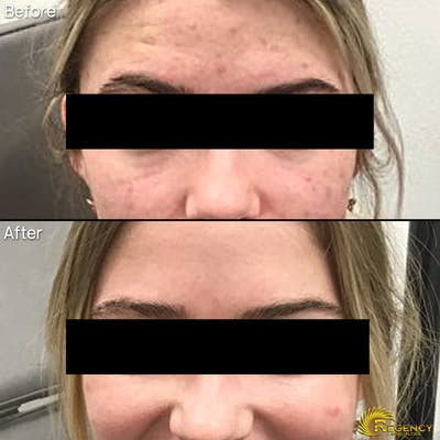 Acne Gallery - Patient 6610732 - Image 1
