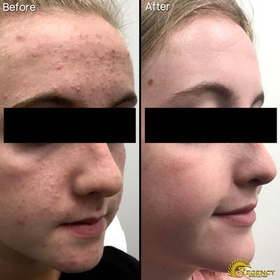Acne Gallery - Patient 6610733 - Image 1