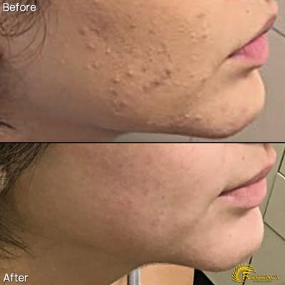 Acne Gallery - Patient 6610734 - Image 1