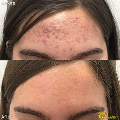 Acne Gallery - Patient 6610735 - Image 1
