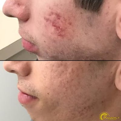 Acne Gallery - Patient 6610736 - Image 1