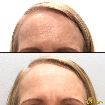 Botox Gallery - Patient 6610768 - Image 1