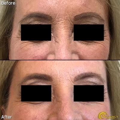 Botox Gallery - Patient 6610769 - Image 1