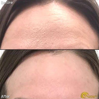 Botox Gallery - Patient 6610770 - Image 1