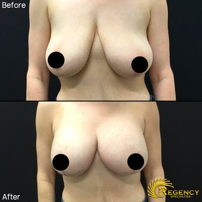 Breast Augmentation Gallery - Patient 6610774 - Image 1