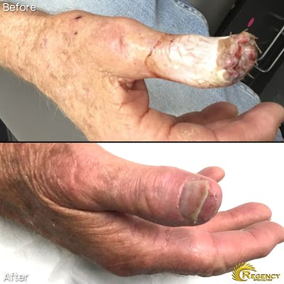 Hand Flaps, Grafts, Reconstruction Gallery - Patient 6610943 - Image 1