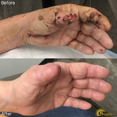 Hand Flaps, Grafts, Reconstruction Gallery - Patient 6610944 - Image 1