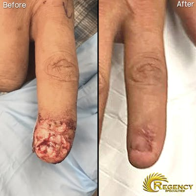 Hand Flaps, Grafts, Reconstruction Gallery - Patient 6610945 - Image 1