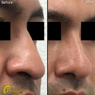 Rhinoplasty Gallery - Patient 6610968 - Image 1