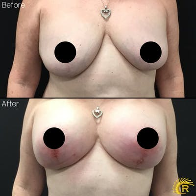 Breast Augmentation Gallery - Patient 7366605 - Image 1