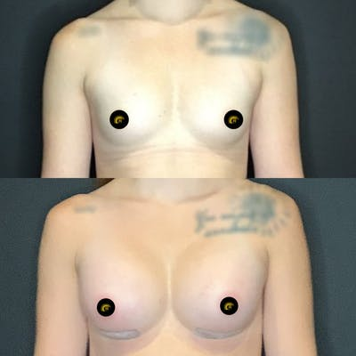 Breast Augmentation Gallery - Patient 41509261 - Image 1