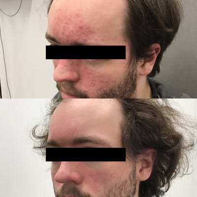 Acne Gallery - Patient 64221501 - Image 1