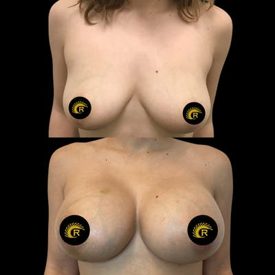 Breast Augmentation Gallery - Patient 64221513 - Image 1