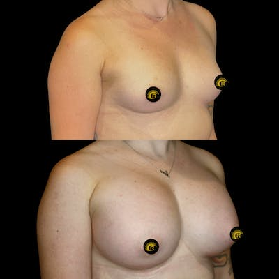 Breast Augmentation Gallery - Patient 64221515 - Image 1