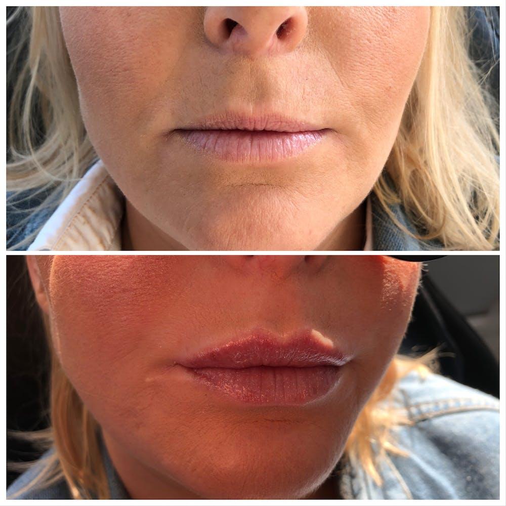 Lip Filler Gallery - Patient 5070642 - Image 1