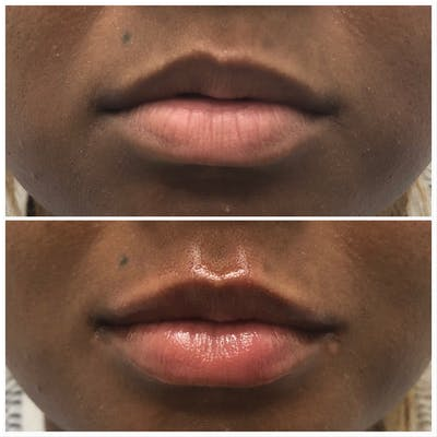 Lip Filler Gallery - Patient 5070643 - Image 1