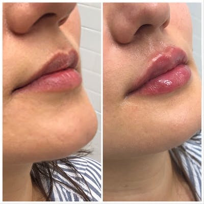 Lip Filler Gallery - Patient 5070644 - Image 1