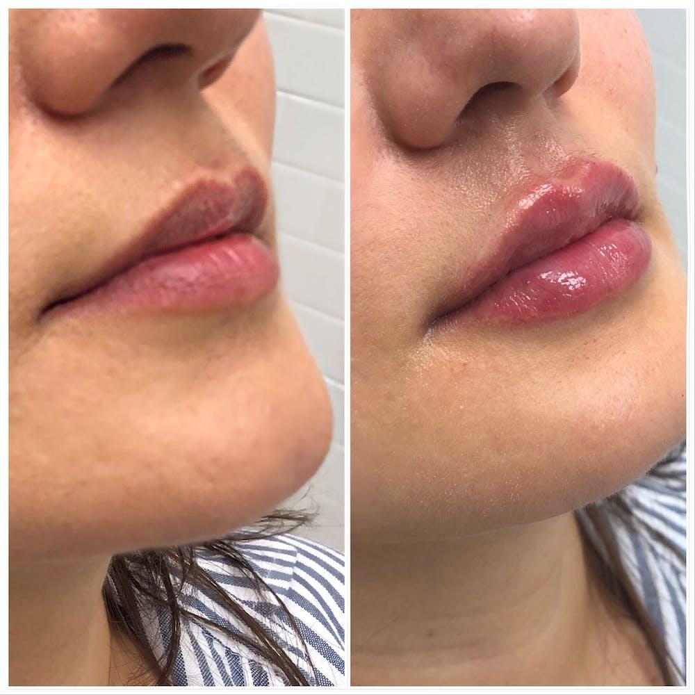 Lip Filler Gallery - Patient 5070644 - Image 1
