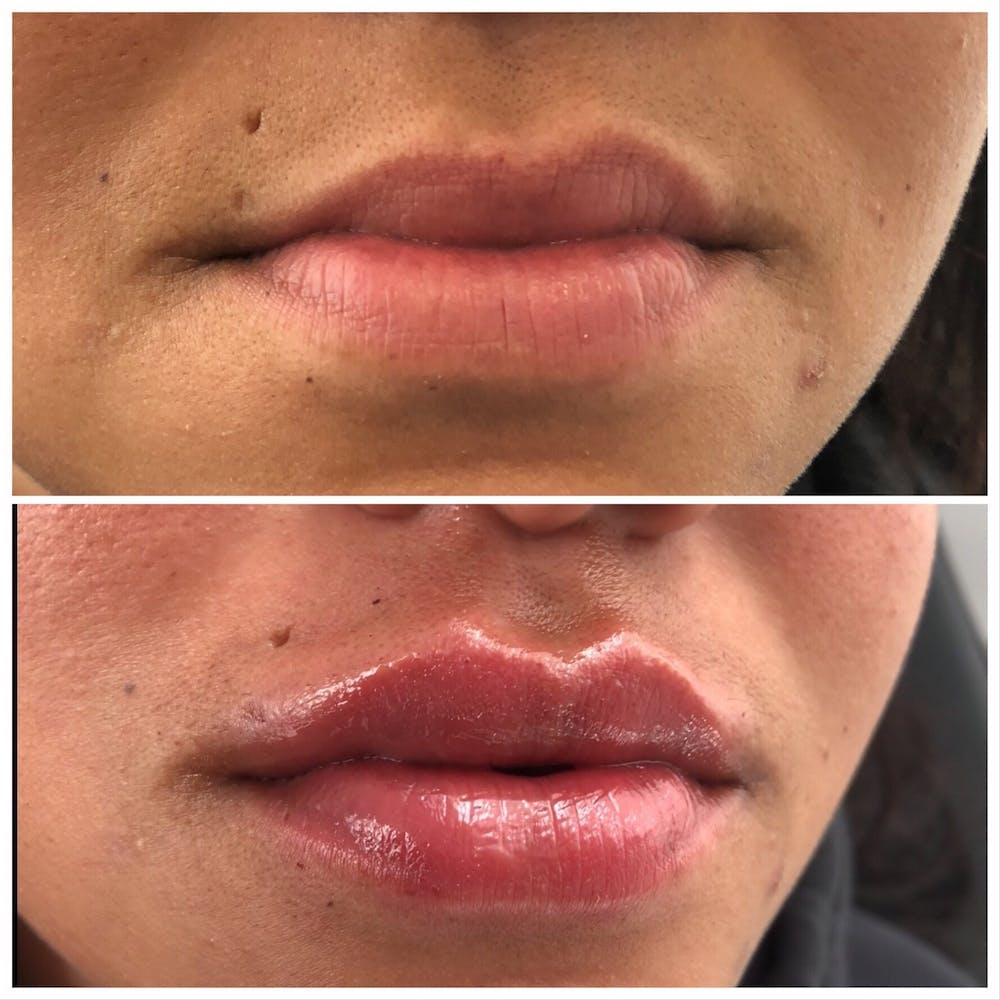 Lip Filler Gallery - Patient 5070645 - Image 1
