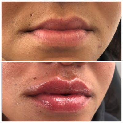 Lip Filler Gallery - Patient 5070645 - Image 1