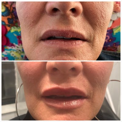 Lip Filler Gallery - Patient 5070646 - Image 1