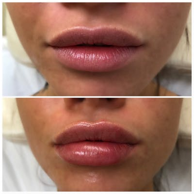 Lip Filler Gallery - Patient 5070647 - Image 1