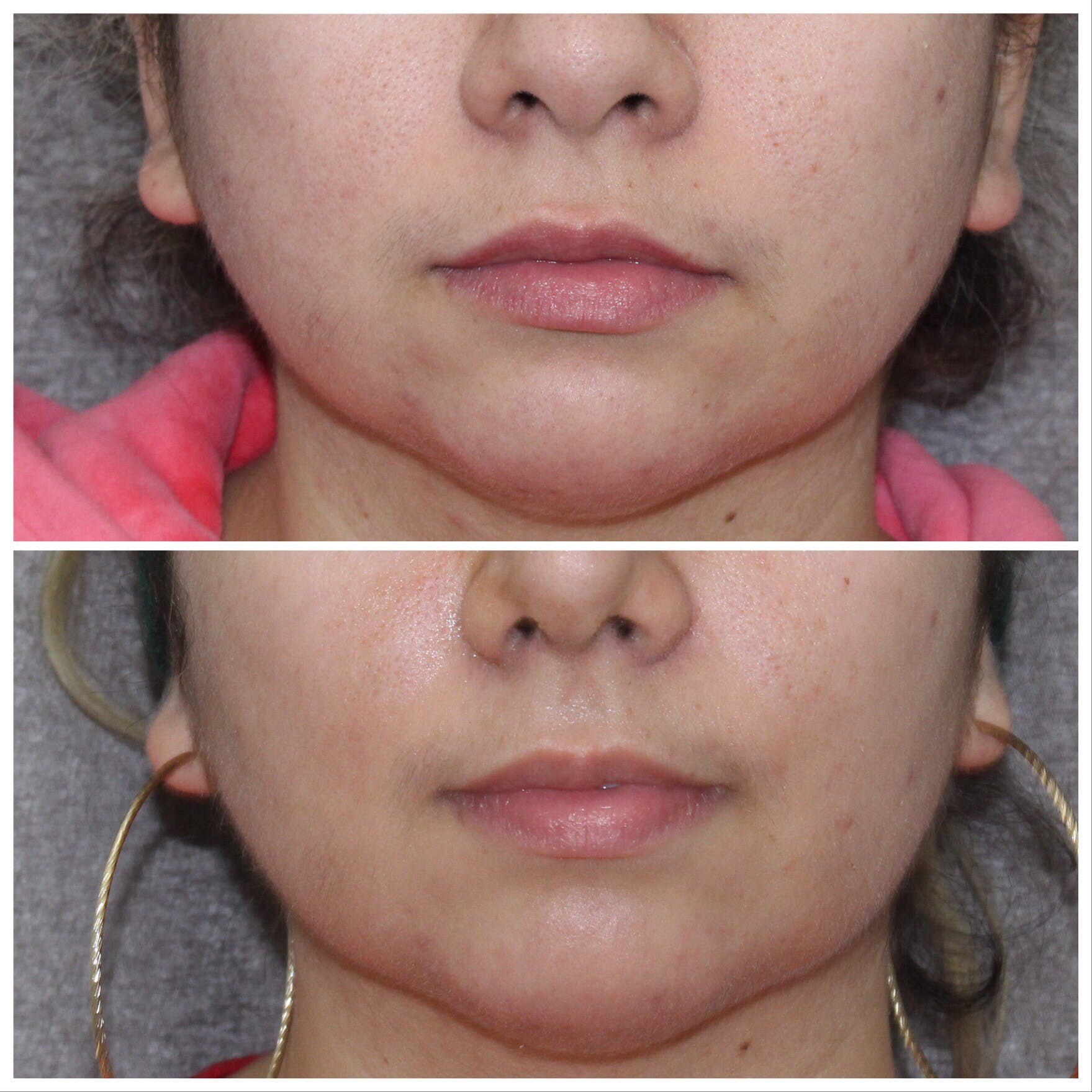 Buccal Fat Gallery - Patient 5070676 - Image 1